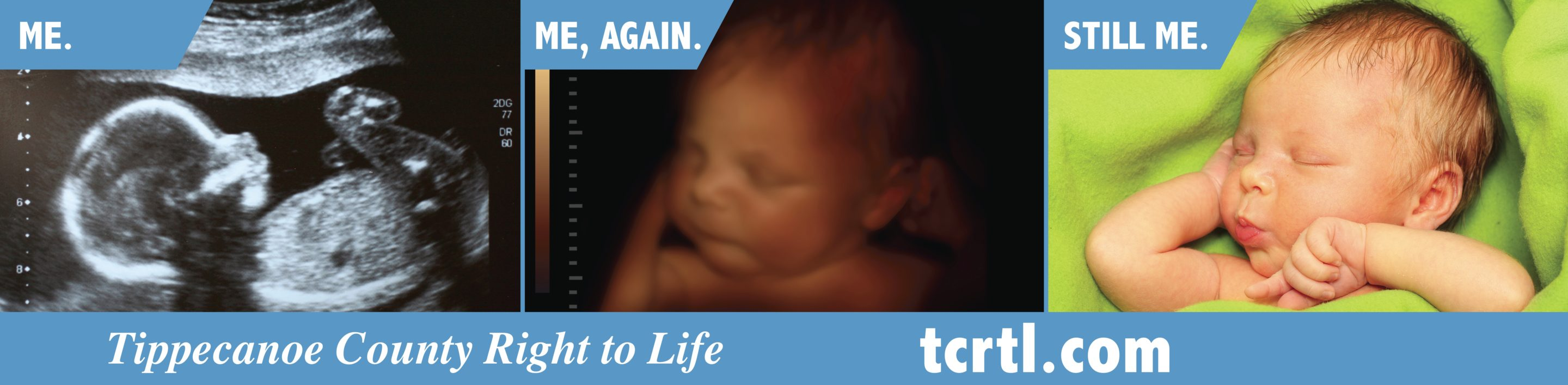Pro-Lifers Win Legal Battle Over 'ME,' 'ME, AGAIN,' 'STILL ME' Bus Ad